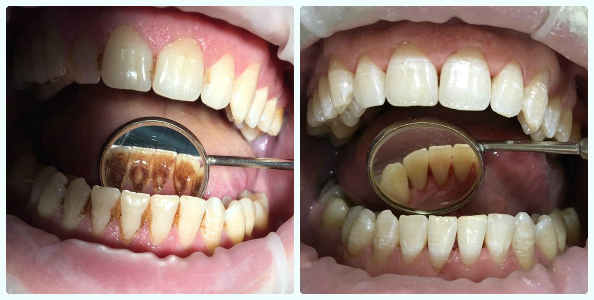 результат чистки зубов от камня