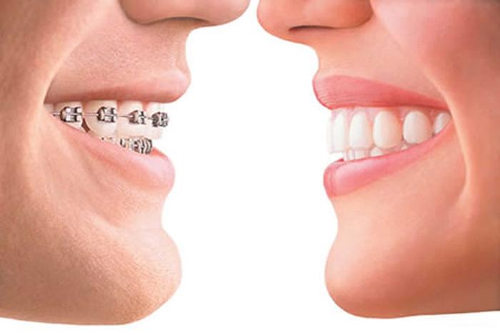 Выравнивание искривленных зубов брекет-системами