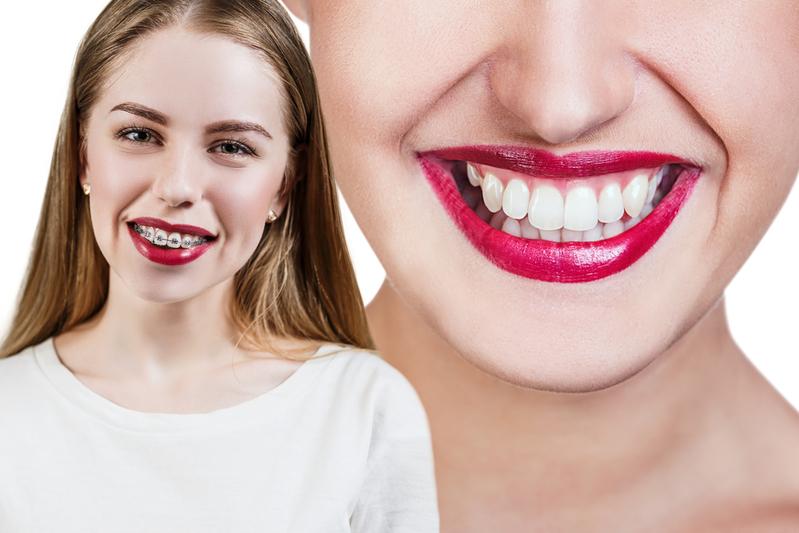 выравнивание искривленных зубов