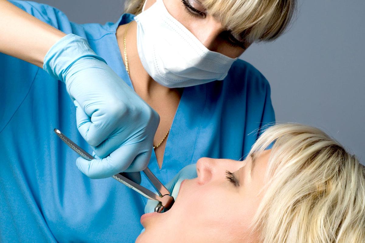 Удаление зуба в Лобне