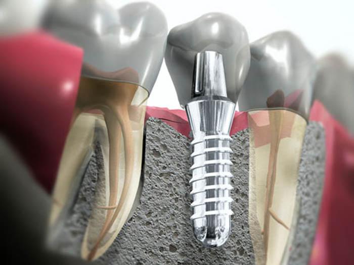 Картинки по запросу Имплантная стоматология